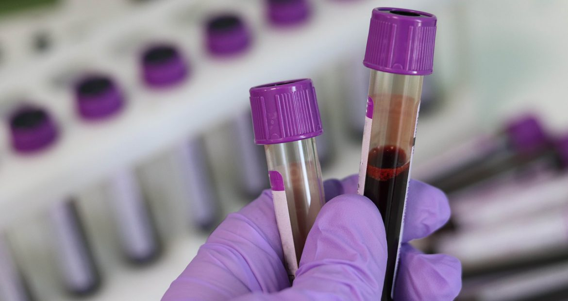 New Zealand: Why Can't Gay Men Donate Blood?